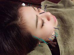 気になる美容鍼で自分磨きするなら『鍼灸 横濱IORI』♪